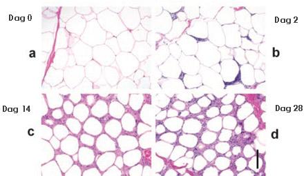 bevroren vetcellen